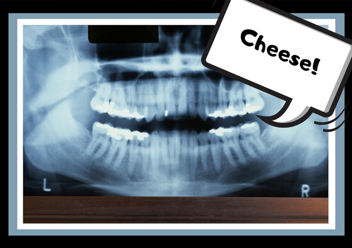 Mouth x-ray