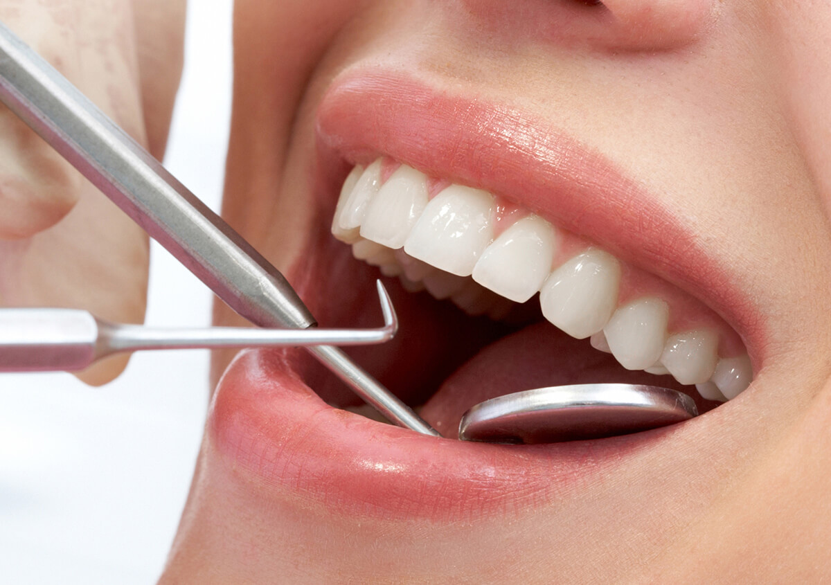 General Dental Care at Foster Dental Care in Blue Springs MO Area