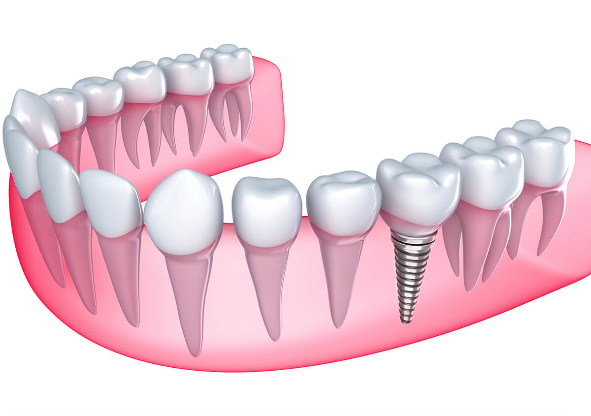 Dental implants replace missing teeth for beautiful, functional smiles in Blue Springs, MO
